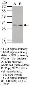 Anti-SORL1 Rabbit Polyclonal Antibody