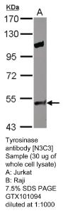 Anti-JAK3 Rabbit Polyclonal Antibody
