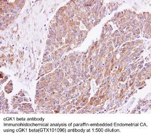 Anti-PTEN Rabbit Polyclonal Antibody