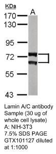 Anti-FLT1 Rabbit Polyclonal Antibody