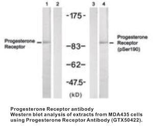 Anti-PGR Rabbit Polyclonal Antibody