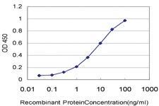 Anti-PADI2 Mouse Monoclonal Antibody [clone: 4D4]