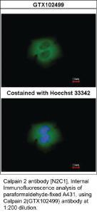 Anti-CAPN2 Rabbit Polyclonal Antibody