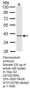 Anti-PKLR Rabbit Polyclonal Antibody