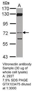 Anti-VTN Rabbit Polyclonal Antibody