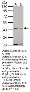 Anti-HSPA1A Rabbit Polyclonal Antibody
