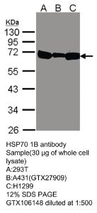 Anti-HSPA1B Rabbit Polyclonal Antibody