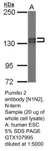 Anti-C1QTNF6 Rabbit Polyclonal Antibody