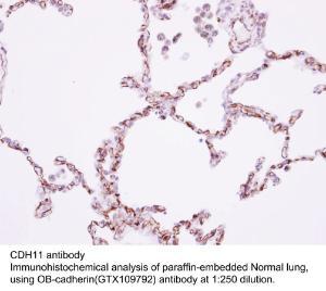 Anti-OR51Q1 Rabbit Polyclonal Antibody