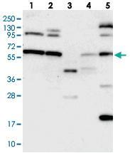 Anti-C12ORF4 Rabbit Polyclonal Antibody