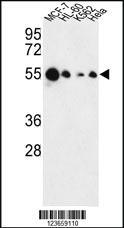 Anti-AIM2 Rabbit Polyclonal Antibody