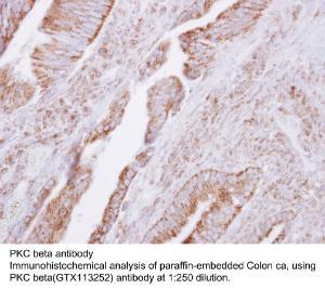 Anti-AGXT Rabbit Polyclonal Antibody