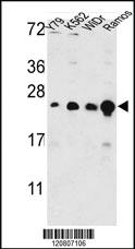Anti-GSTP1 Rabbit Polyclonal Antibody