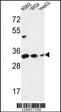 Anti-PYCR1 Rabbit Polyclonal Antibody