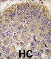 Anti-CHRD Rabbit Polyclonal Antibody