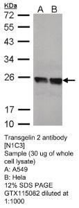 Anti-CDKN1B Rabbit Polyclonal Antibody