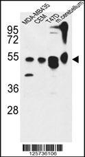 Anti-KIAA0652 Rabbit Polyclonal Antibody