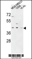 Anti-PRPF38A Rabbit Polyclonal Antibody