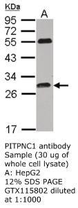 Anti-ANLN Rabbit Polyclonal Antibody