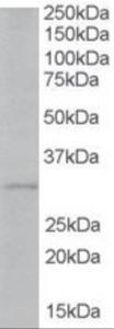 Anti-TIRAP Goat Polyclonal Antibody
