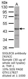 Anti-SIGLEC8 Rabbit Polyclonal Antibody