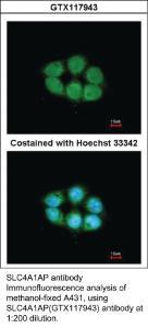 Anti-SLC4A1AP Rabbit Polyclonal Antibody