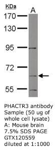 Anti-PHACTR3 Rabbit Polyclonal Antibody