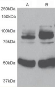 Western blot analysis of APPL1 in 1) rat Aortic Smooth Muscle lysate 2) after infection with human APPL1 adenovirus for 48hrs using APPL1 Antibody at 0.5 ug/mL.