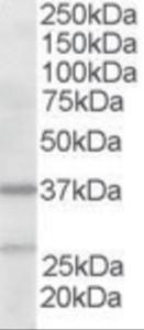 Western blot analysis of ARP2-3 in human liver lysate (RIPA buffer, 35 ug total protein per lane) using ARP2-3 Antibody at 2 ug/mL.