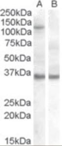 Western blot analysis of EIF2C1 in HEK293 overexpressing EIF2C1 (non-transfected HEK293 in lane B) using EIF2C1 antibody.