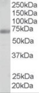 Western blot analysis of FBP17 in human testis lysate (RIPA buffer, 35 ug total protein per lane) using FBP17 Antibody at 0.25 ug/mL.