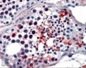 Immunohistochemistry staining of FHL1 in human testis using FHL1 Antibody at 2.5 ug/mL.