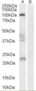 Western blot analysis of Nogo 66 Receptor in human brain lysate (35 ug protein in RIPA buffer) with (B) and without (A) blocking with the immunizing peptide using Nogo 66 Receptor Antibody at 0.3 ug/mL.