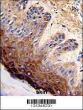 Anti-TOP2A Rabbit Polyclonal Antibody