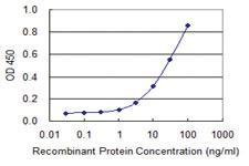 Anti-TOB2 Mouse Monoclonal Antibody [clone: 2F2-1A7]