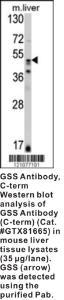Anti-GSS Rabbit Polyclonal Antibody