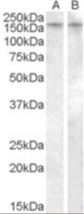 Western blot analysis of AVPR1B in human amygdala lysate (35 ug protein in RIPA buffer) in lane A and rat brain lysate (35 ug protein in RIPA buffer) in lane B using AVPR1B Antibody at 0.5 ug/mL.