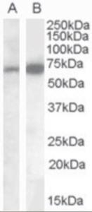 Western blot analysis of CADM4 in human cerebellum lysate (35 ug protein in RIPA buffer) using CADM4 antibody A) 0.1 ug/mL and B) 0.05 ug/mL.