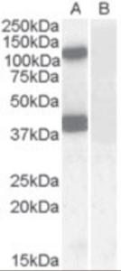 Western blot analysis of EPB41L2 in human cerebellum lysate (35 ug protein in RIPA buffer) with (B) and without (A) blocking with the immunizing peptide using EPB41L2 Antibody at 0.1 ug/mL.
