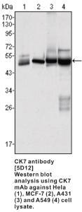 Anti-CK7 Mouse Monoclonal Antibody [clone: 5D12]