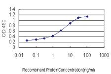 Anti-AHCYL1 Mouse Monoclonal Antibody [clone: 5D6]
