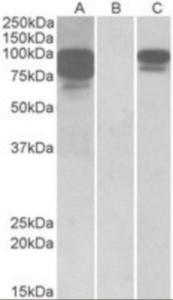Anti-PCSK9 Goat Polyclonal Antibody