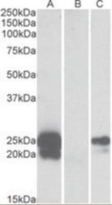 Anti-WFDC2 Goat Polyclonal Antibody
