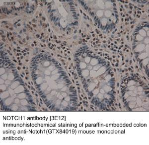 Anti-NOTCH1 Mouse Monoclonal Antibody [clone: 3000000000000]