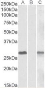 Anti-DYDC1 Goat Polyclonal Antibody