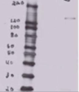 MDCK overexpressing mouse Btbd7 (third lane) and probed with BTBD7 Antibody (mock transfection in first lane, full construct chemically suppressed in second lane).