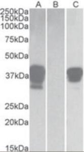 HEK293 lysate (10 ug protein in RIPA buffer) overexpressing human POU2AF1 with DYKDDDDK tag probed with (1/3000) in lane C. Mock-transfected HEK293 probed with EB10018(1 mg/mL) in Lane B. Primary incubations were for 1 hour.