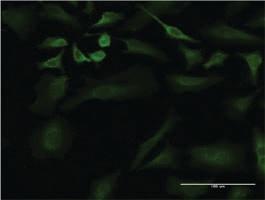 Anti-ULK2 Mouse Monoclonal Antibody [clone: 2A12]