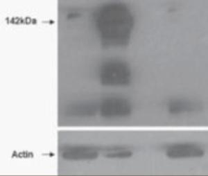 HEK293 overexpressing TNKS (lane 2) and TNKS2 (lane 4) and probed with TNKS2 Antibody at mock transfection in first lane). Lane three is empty.
