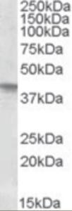 Western blot analysis of SFRP4 in human uterus lysate (35 ug protein in RIPA buffer) using SFRP4 Antibody at 0.3 ug/mL.
